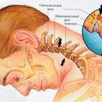 Экстрасистолия при остеохондрозе