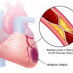 Тропонины при инфаркте миокарда