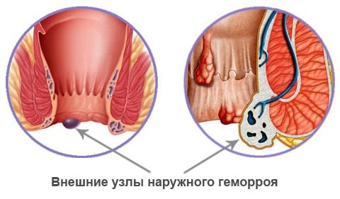Наружный тромбоз геморроидального узла лечение
