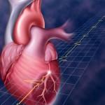Обширный инфаркт миокарда: лечение