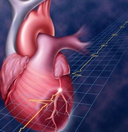 Обширный инфаркт Миокарда лечение