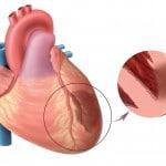 Обширный инфаркт миокарда: прогноз