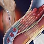 Симптомы тромбоза вен нижних конечностей