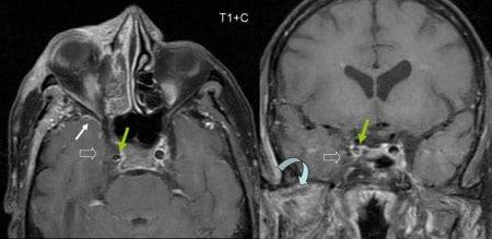 Синус тромбоз головного мозга