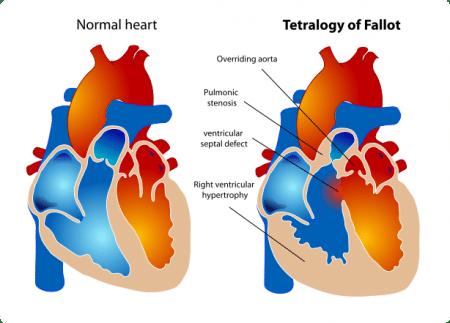 Стеноз легочной артерии у новорожденного
