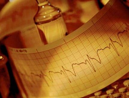 аритмия сердца лечение лекарствами