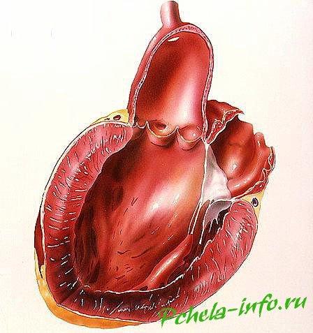 инфаркт миокарда причины и последствия