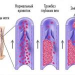 Окклюзионный тромбоз глубоких вен