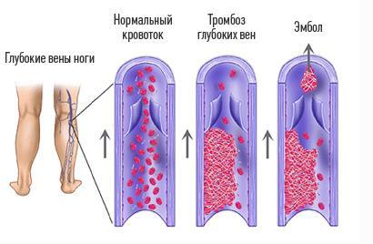 Окклюзионный тромбоз глуюоких вен