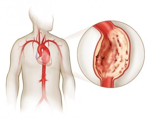 Расширение аорты сердца