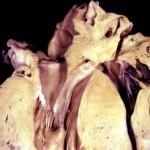 Диффузные изменения миокарда: лечение