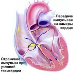 Синусовая тахикардия сердца: что это такое?