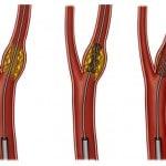 Стеноз сонной артерии: лечение