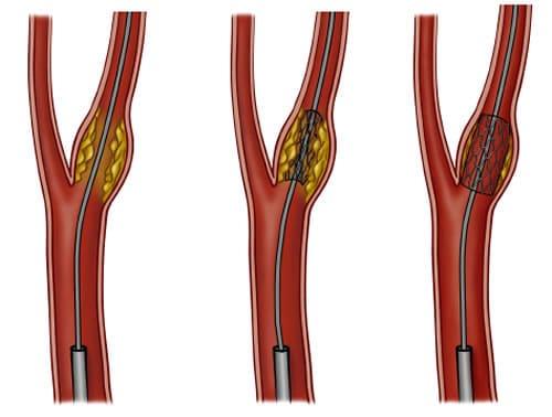 Стеноз сонной артерии лечение